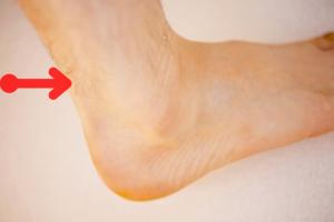 アキレス腱は真ん中の部分が傷みやすい