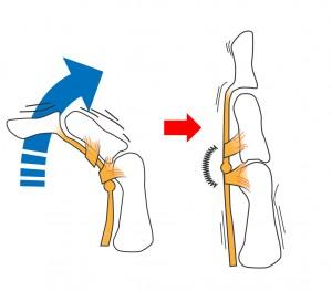 指の使いすぎで腱鞘や腱が腫れたり、固くなります。すると、段々と刺激が強くなりバネ指の症状(引っかかり)がひどくなります。