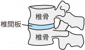 椎間板の減少は筋肉でカバーできます