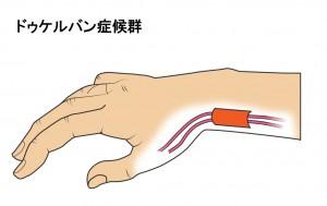 腱が厚くなって、鞘(さや)に収まらいと痛む