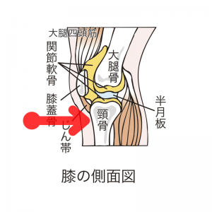 痛みが出る箇所(赤い矢印)