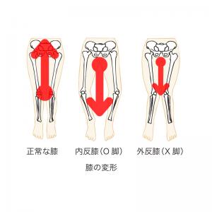 O脚だと腰が下がり背骨を圧迫する。(X脚も同じ)