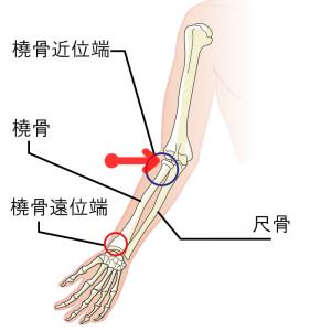 痛みの場所:赤い矢印(肘の外側)