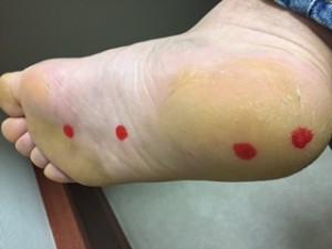 足底筋膜炎で痛くなる場所
