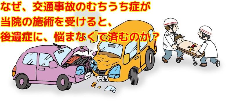 なぜ、交通事故のむち打ち症が当院の施術を受けると、後遺症に悩まなくても済むのか?