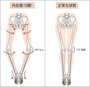 O脚と正常な膝